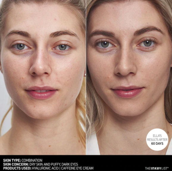 model before with puffy purple undereyes, then with better looking undereyes after using for 60 days