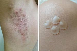 Razor bumps and pus-filled acne patches