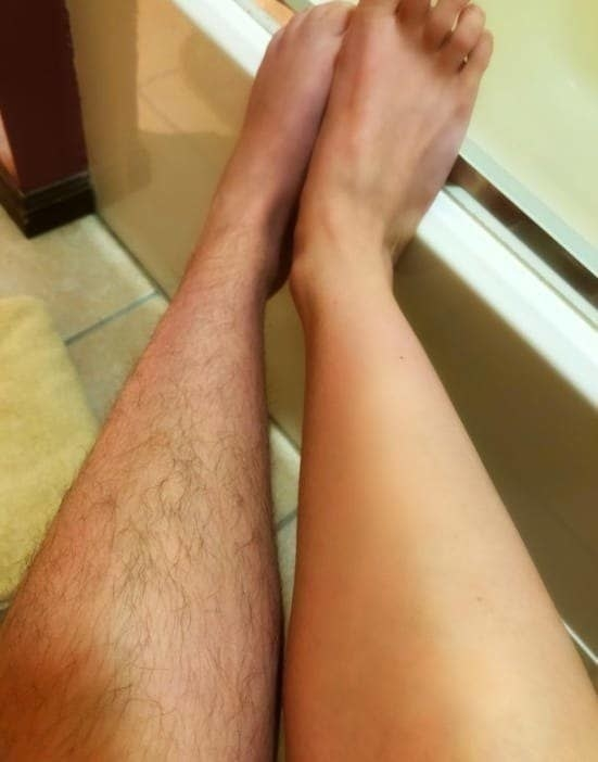 A reviewer showing that their left leg is hairy, but their right leg is hair-free after using the device