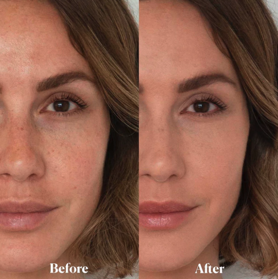 A before and after photo showing the setting powder creating a smoother complexion