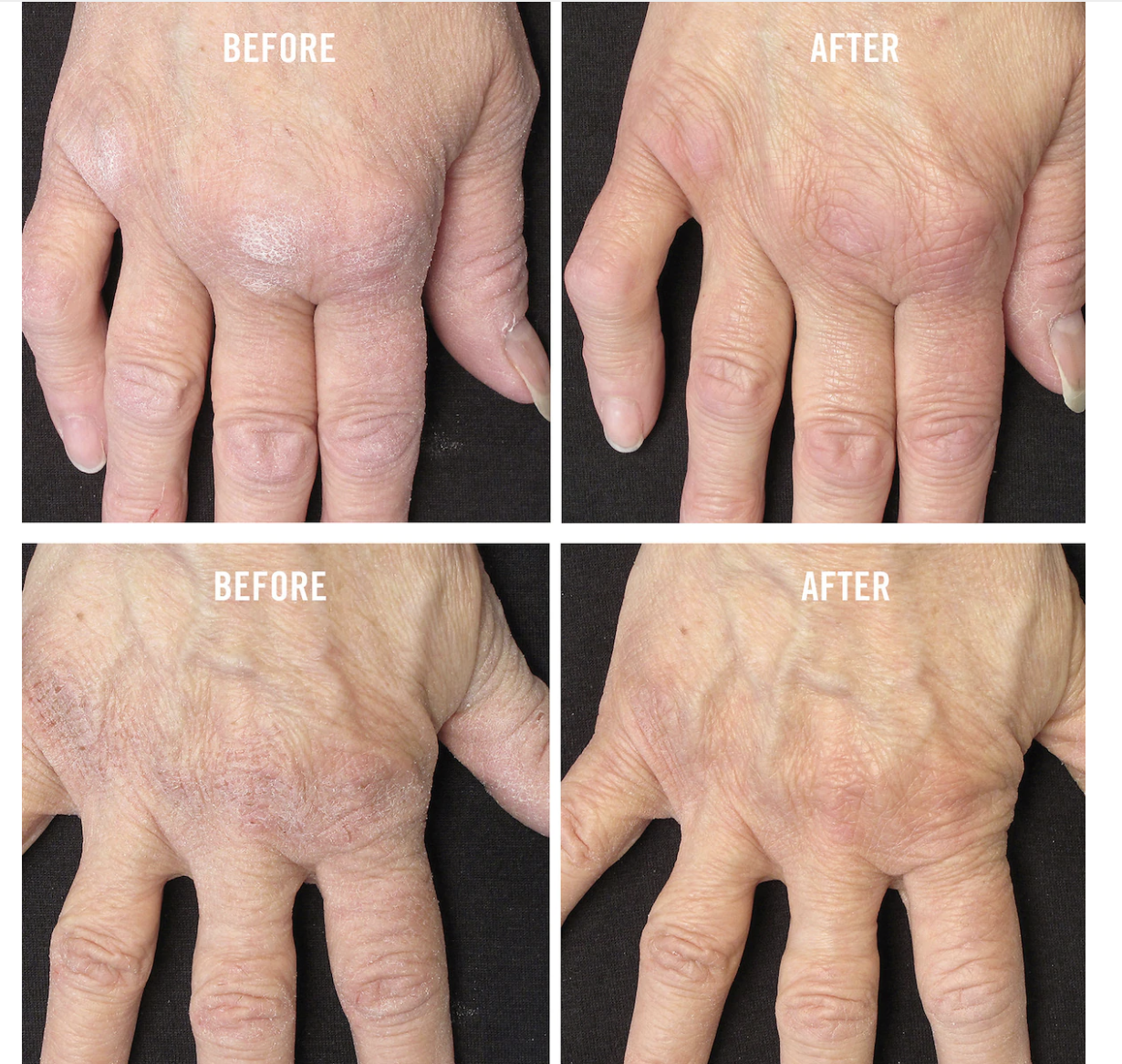 Before and after photos show that the cream has moisturized and repaired dry and cracked hands