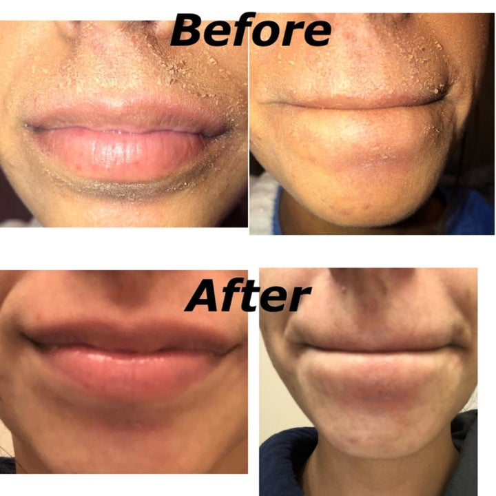 A reviewer's before and after pictures which show their  once very dry skin is now hydrated and flake-free