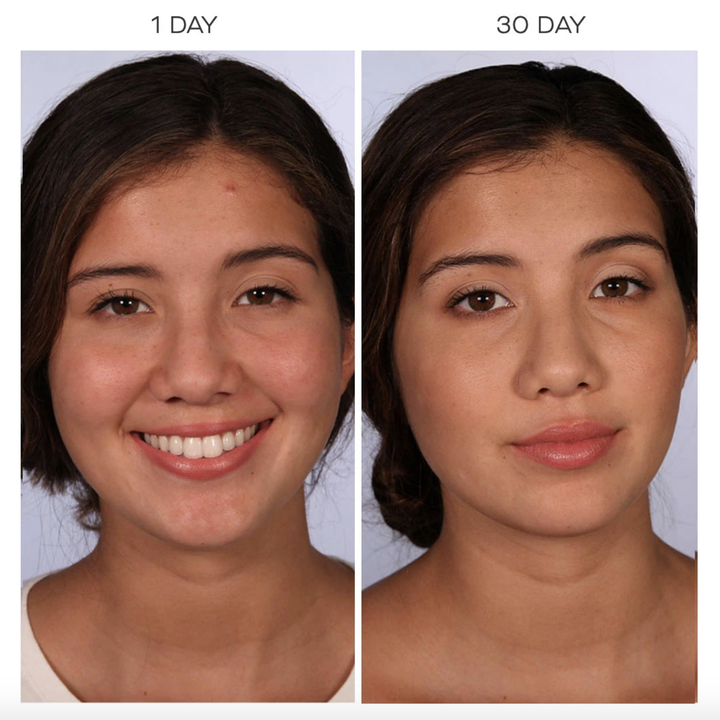 before-and-after of a person's skin on day one showing some redness and blemishes compared to their face on day 30 with a clearer complexion and more even tone