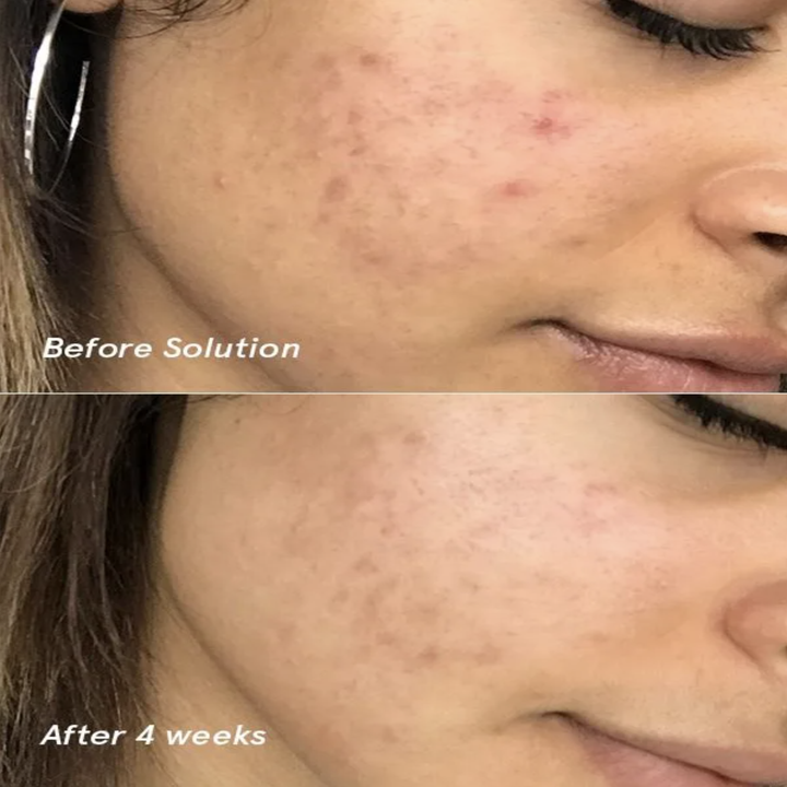 A model with red, scarred skin before using the Solution // The same model with less redness after using the Solution for four weeks