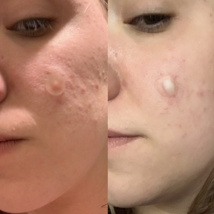 Reviewer before and after photo of  Mighty Match Pimple Spot Treatment results