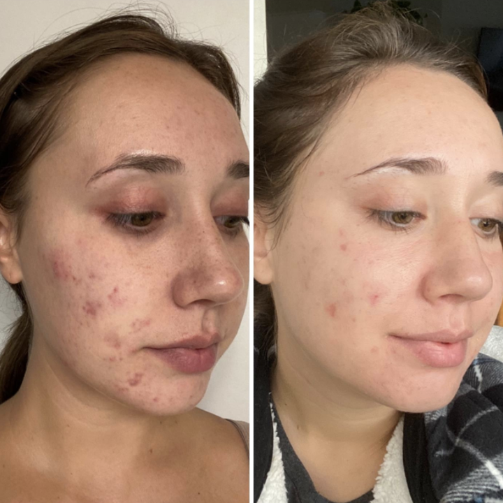 Reviewer photo of before and after using Differin Gel