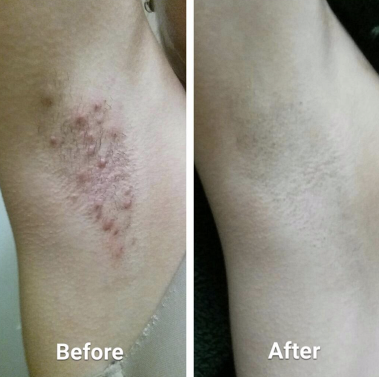 Reviewer photo of before and after using Tend Skin solution on underarms