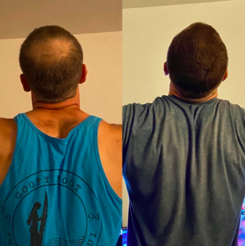 a before image of a reviewer with a bald spot on the top of their head next to an after image of that same bald spot filled in by the product