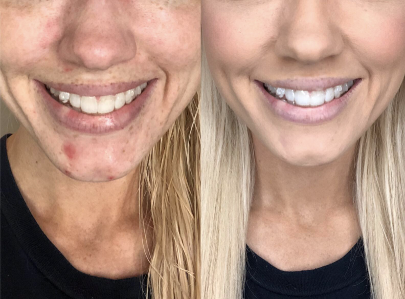 Reviewer before and after photo of face with and without foundation