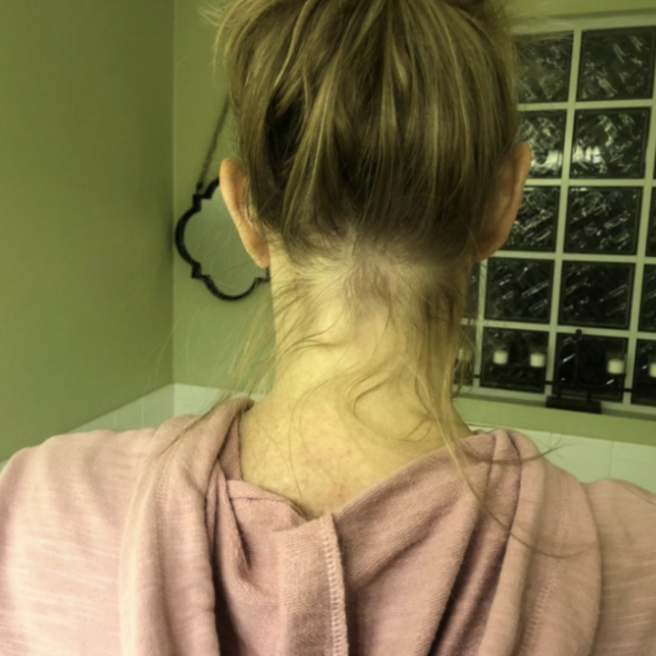 Reviewer photo of back hair before using finishing stick