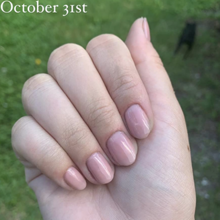 Reviewer before photo of nails