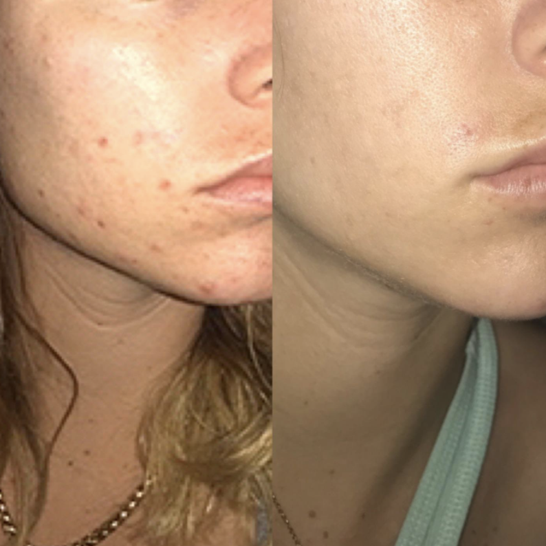 Reviewer before and after photo of face results from moisturizer