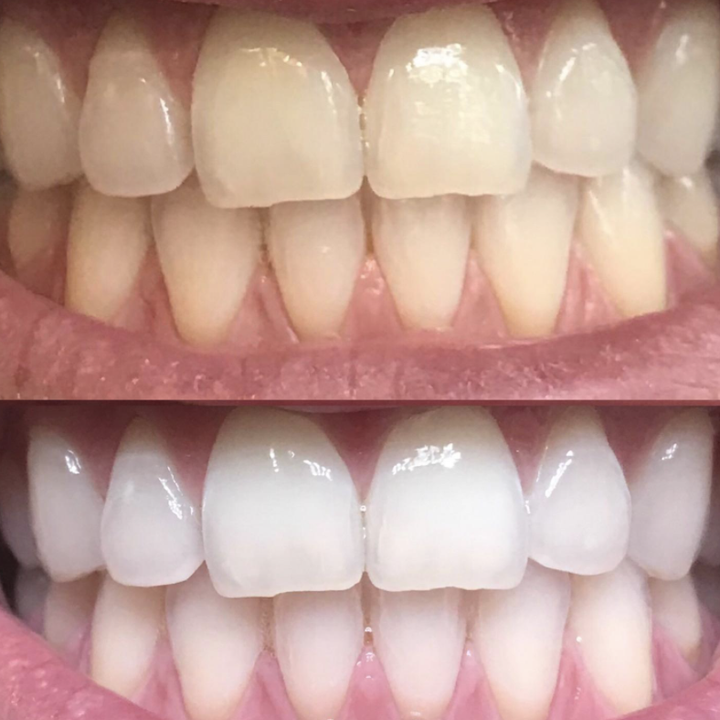 Reviewer before and after photo of results from toothpaste