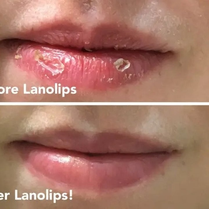 Reviewer photo of before and after lips using Lanolips