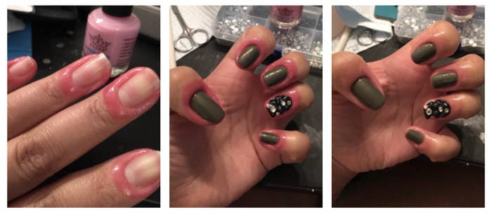 Reviewer before and after photo showing how to use nail latex tape