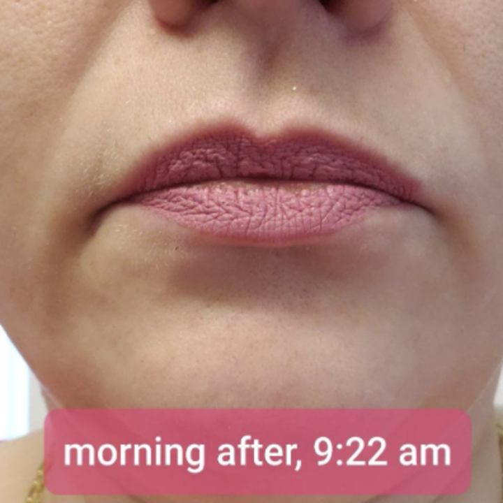 Review after photo showing lips at 9:22 AM