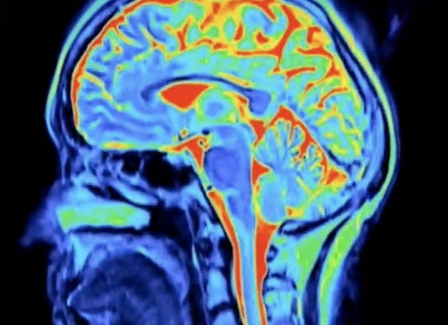 A scan of a brain