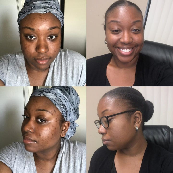 A reviewer's before and after pictures which show her skin is much brighter and clearer
