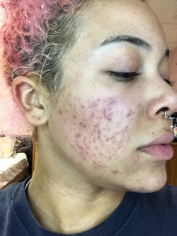 Reviewer's face with acne and dark spots before using Admire My Skin's 2% Hydroquinone Dark Spot Corrector Remover