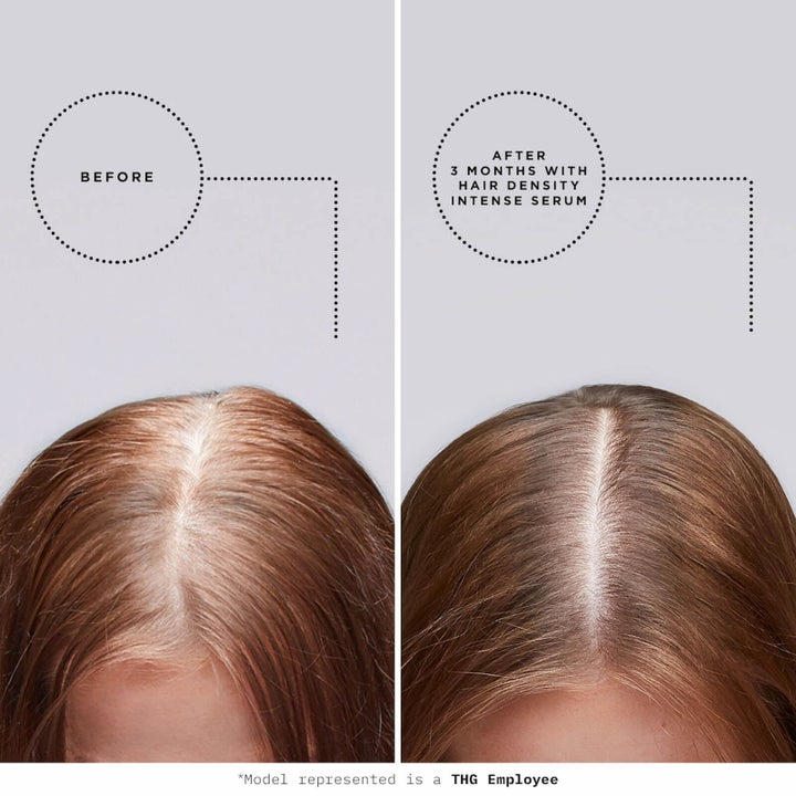 Before and after shot of model showing thin hair before treatment and thicker hair after treatment with serum