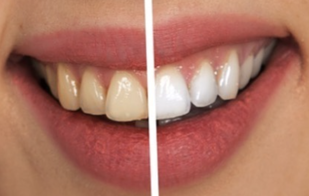 A dramatic before and after teeth whitening