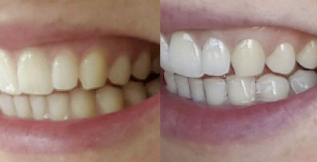 A before and after of teeth whitening