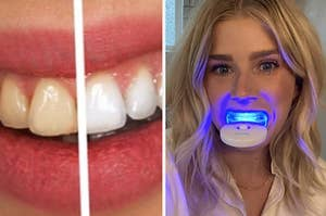 A dramatic before and after of teeth whitening and a person with the LED light in their mouth