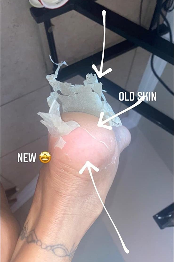 A reviewer's feet mid-peel
