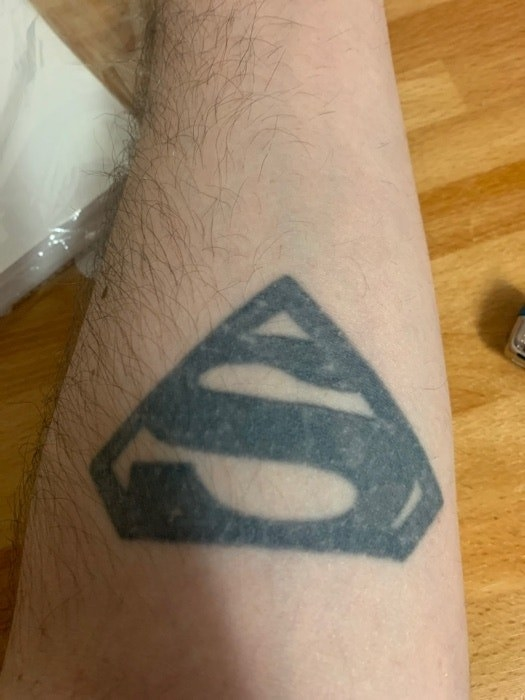 A faded black Superman symbol tattoo on someone's arm