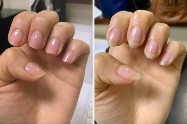 On the left, a reviewer's nails looking short, and on the right, the same reviewer's nails looking longer after using the cream