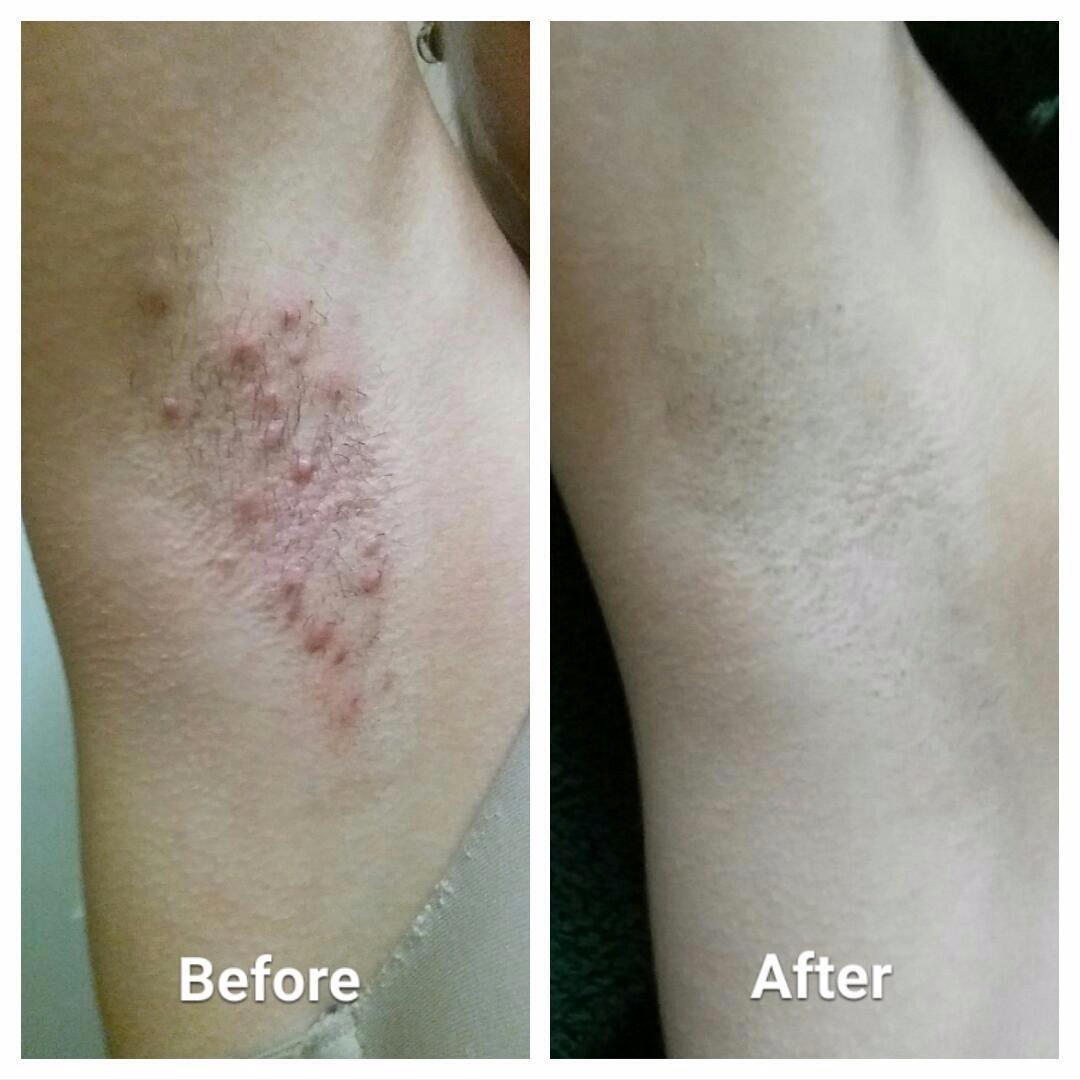 Reviewer's inflamed armpit area with ingrown bumps in first photo, reviewer's cleared up armpit skin after using the solution in second photo