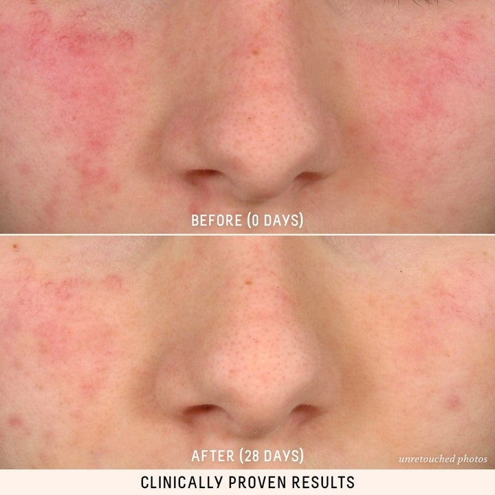 a before and after shot of a person's face with redness, and reduced redness after 28 days of using the product