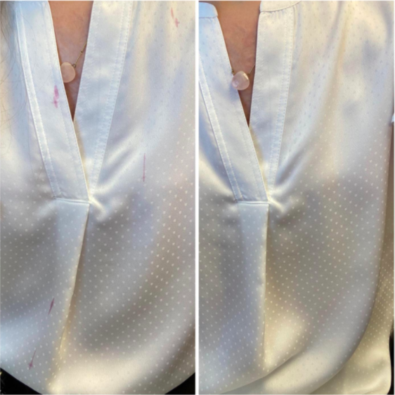 reviewer's before-and-after photo showing the stains on their white blouse completely removed after using the Shout wipes