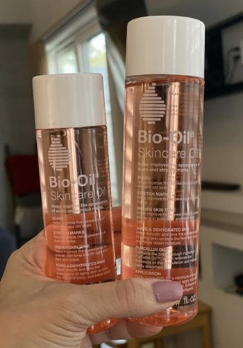 Reviewer holding bottles of bio oil