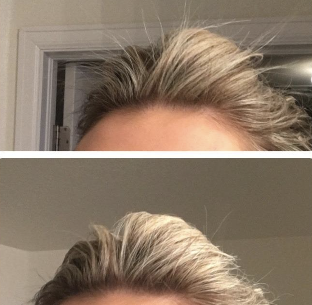 A reviewer with flyaways before using the product // The same reviewer with fewer stray hairs after using the product