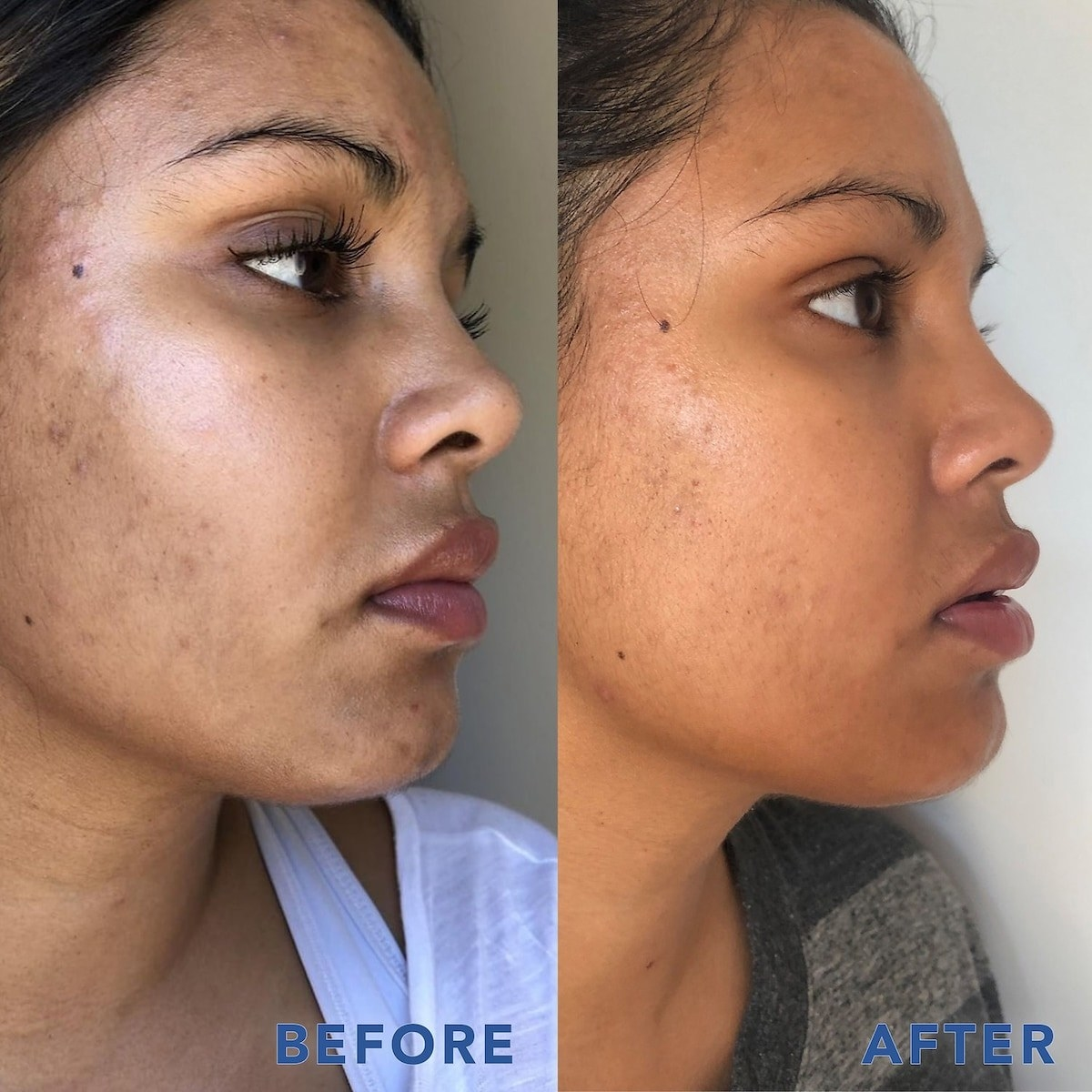 before and after photo of model with dark spots on left and visibly less dark spots on right