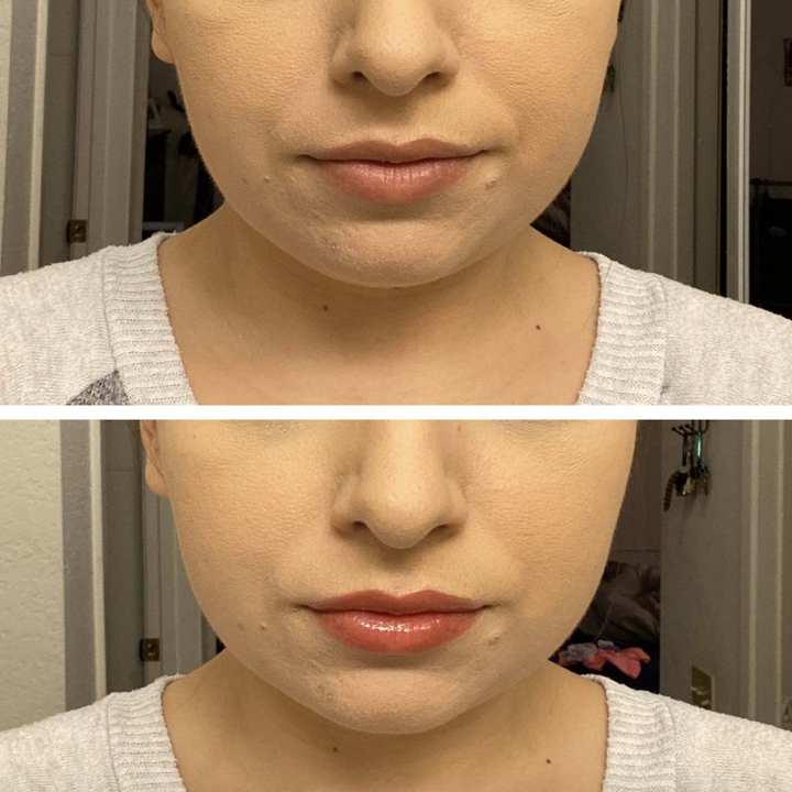 reviewer before and after photo showing the pink lip tint
