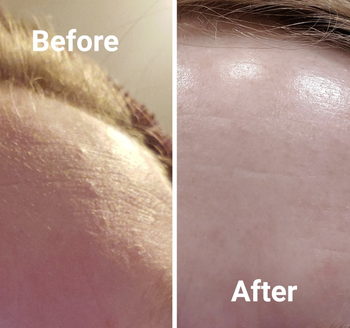 reviewer before and after photo of fine line and pimple on left and visibly less fine lines and pimples on right