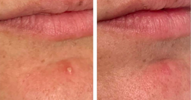 reviewer before-and-after photo showing zit