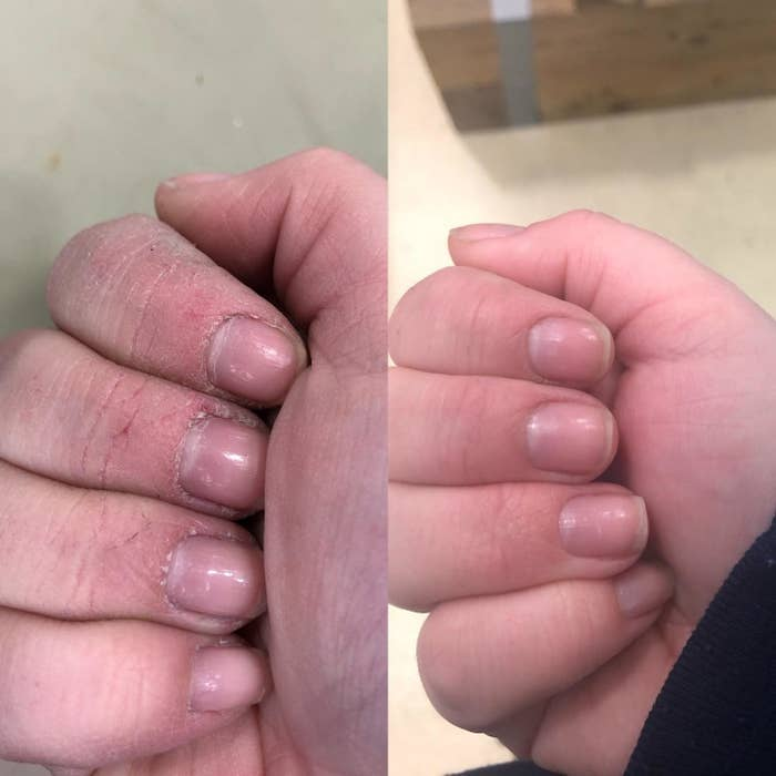 Reviewer showing cracked hands and soft hands after using the lotion