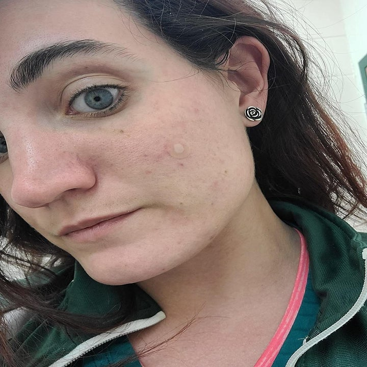 Clear Mighty Patch covers pimple on reviewer's cheek