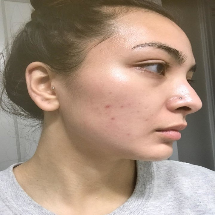 Reviewer's face with some breakouts on their cheek