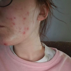 Different review image of person's face covered in irritated acne