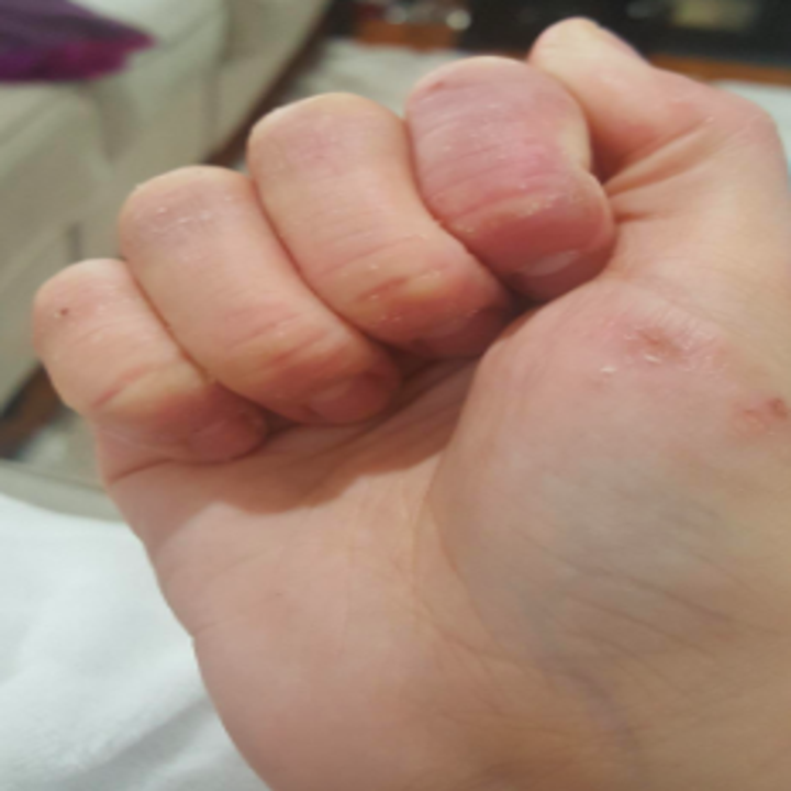 Hands after for days. They are still red with some sores left, but considerably less dry with cracks almost completely gone.