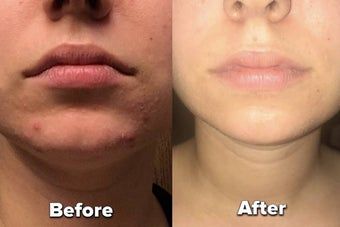 a side by side of a reviewer's skin before and after using a skincare product