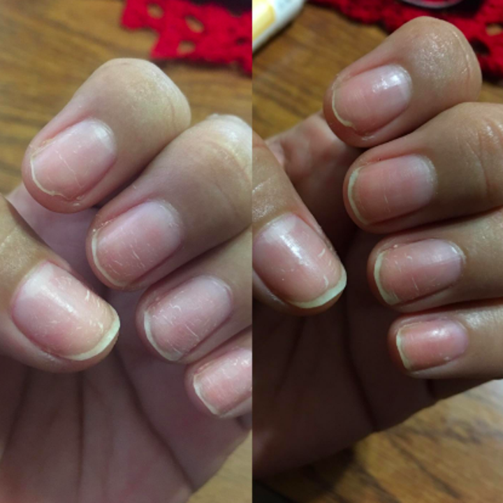 Reviewer's nails after three days of use, less scratched and stronger