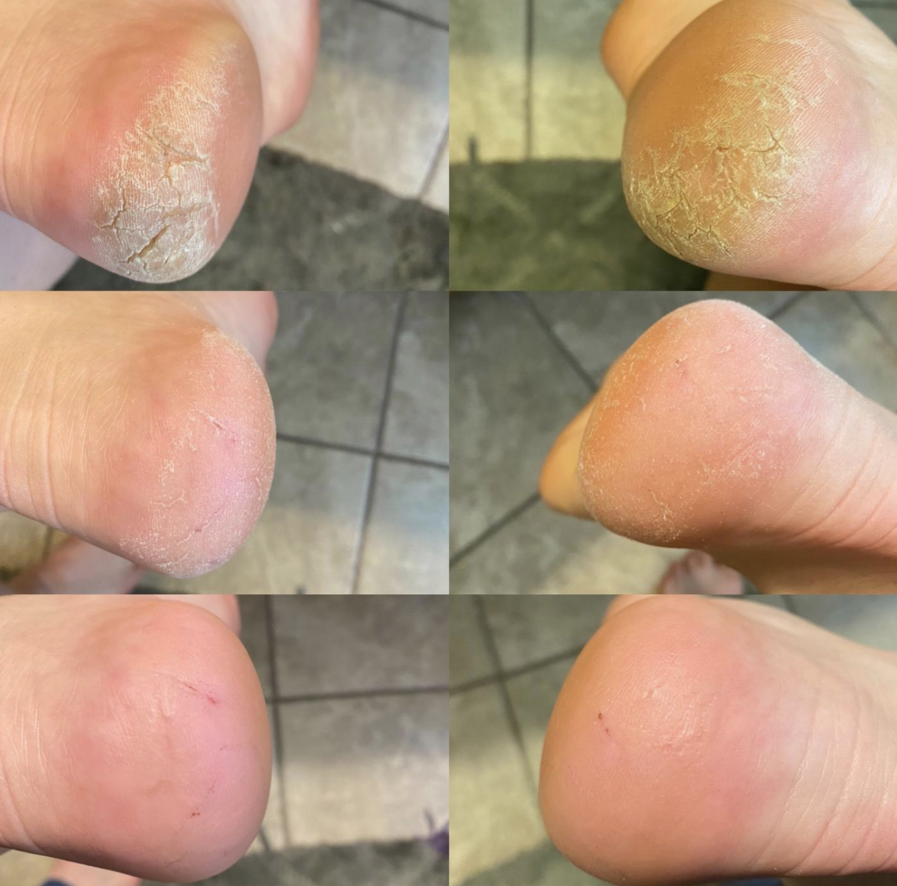 three progression photos from a reviewer showing significantly less dry and cracked heels after using rasp