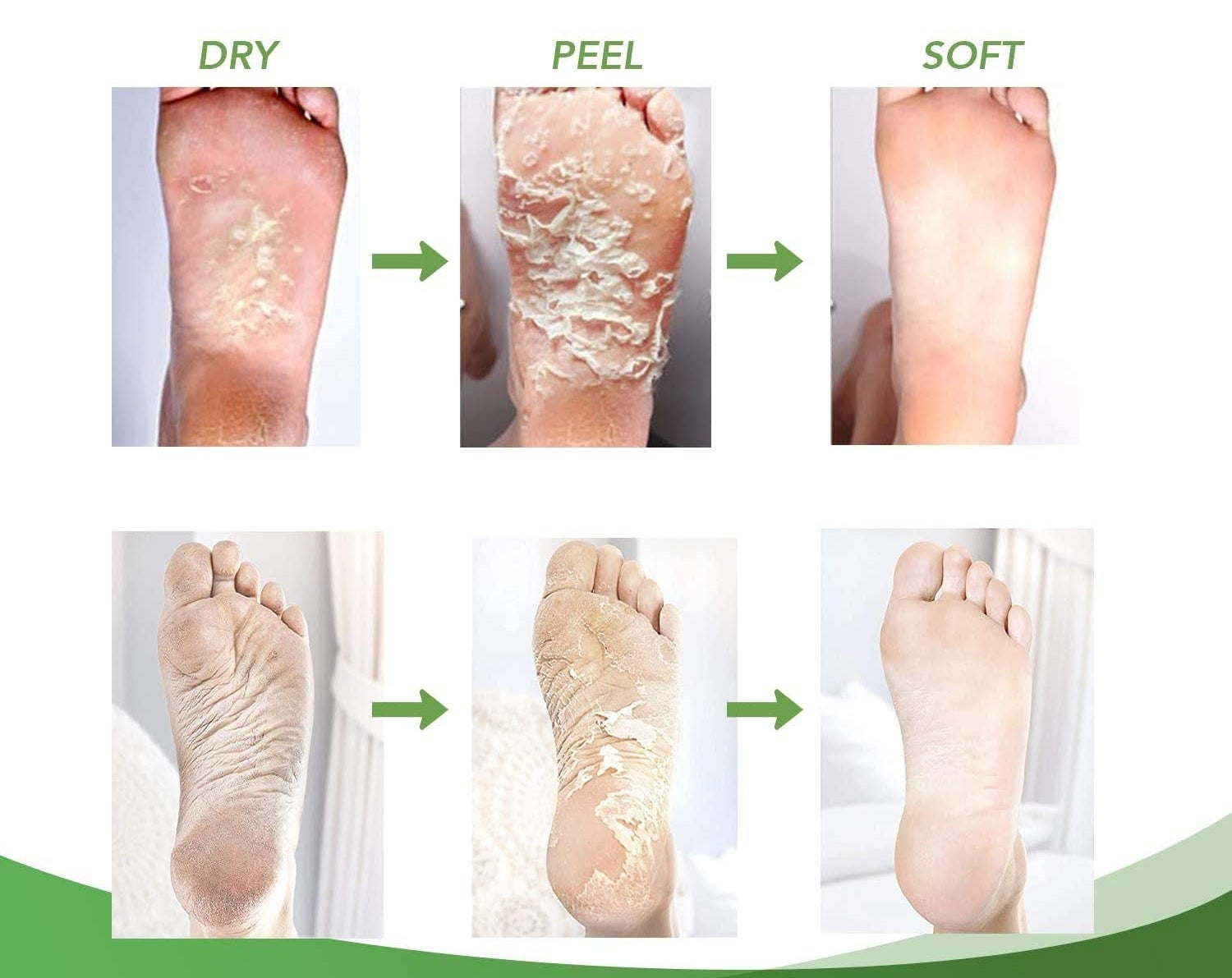 A progress photo showing dead skin peeling off the foot