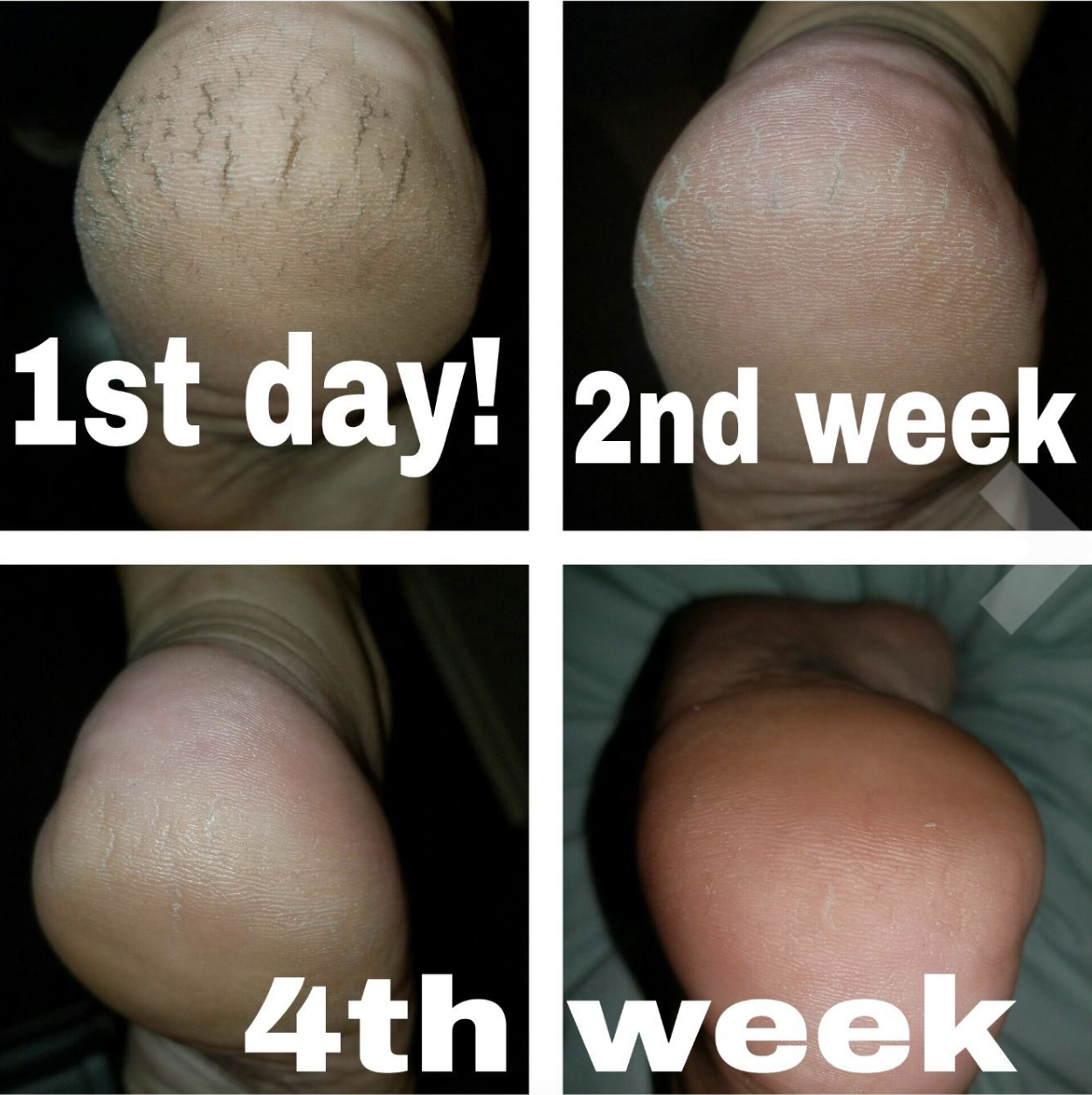 Images of a reviewer's dry, cracked heel on day one with improvements by the second week and a smooth heel by the fourth week