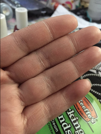 A reviewer with dry hands